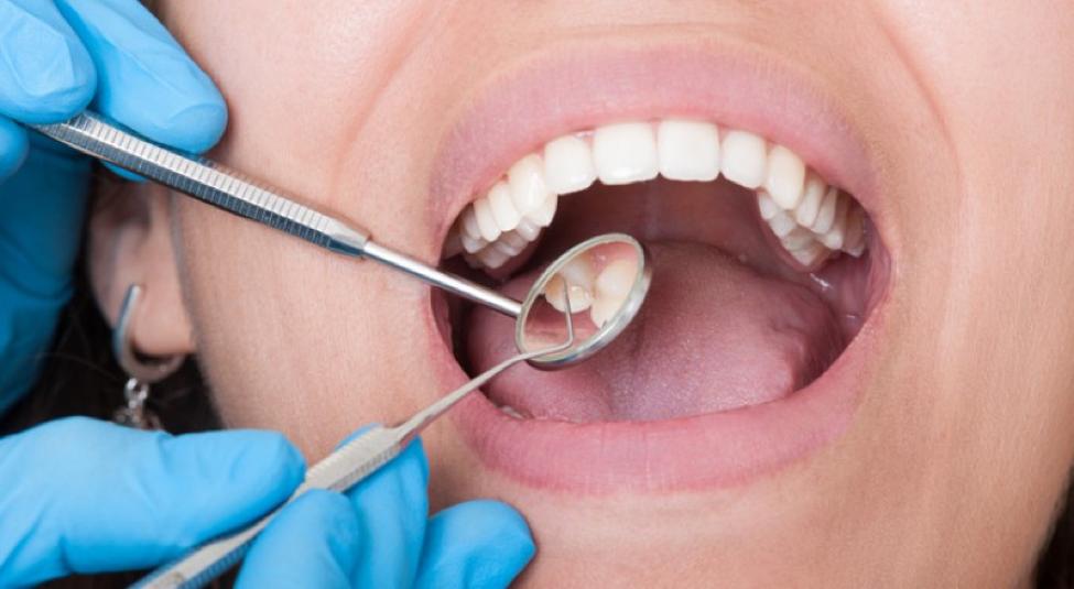 خلع-الأسنان.png